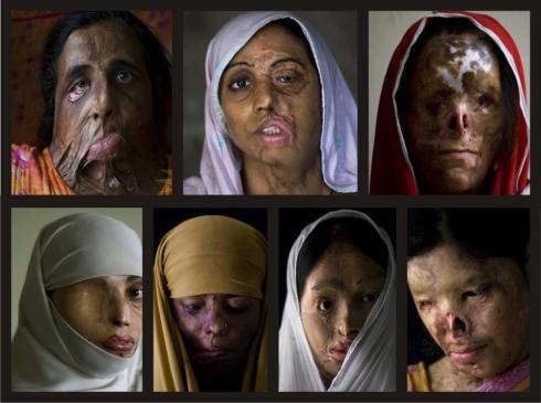 Victims of Acid Attacks